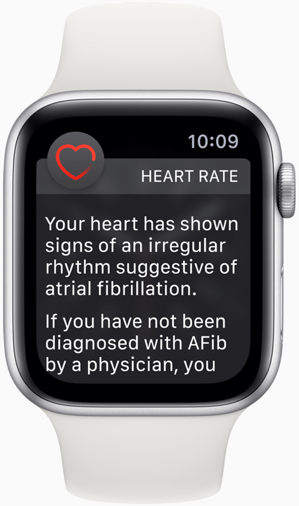 Apple Watch Series 1 or later with watchOS 5.1.2 sends a notification if an irregular heart rhythm such as AFib, is identified.